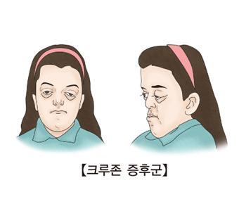 얼굴중앙부위의 발육부전, 안구돌출 등의 기형이 동반된 여성의 정면과측면모습