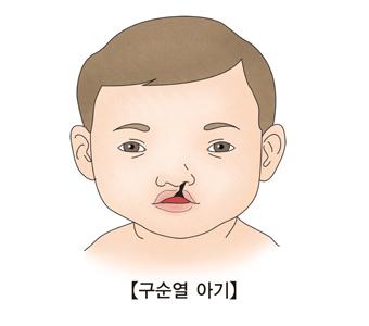 구순열로 윗입술이 갈라진 아기