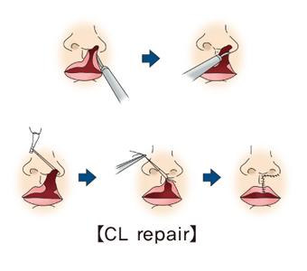 CL repair의 예시