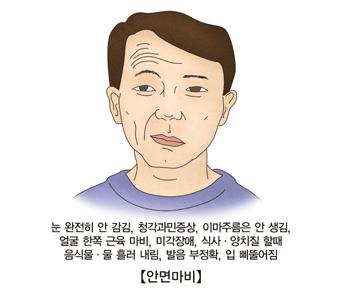 안면마비-눈 완전히 안감김,청각 과민증상,이마주름은 안생김,얼굴 한쪽 근육마비,미각장애,식사및양치질할때 음식물및물 흘러내림,발음 부정확,입 삐뚤어짐