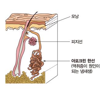 모낭 피지선 아포크린 한성(액취증이 원인이 되는 냄새샘)의 위치 예시
