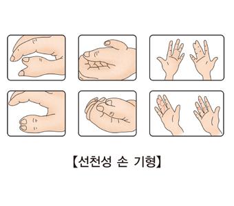 선천성 손 기형의 대한 예시