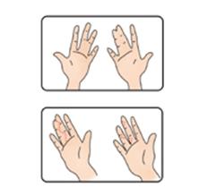 합지증 (물갈퀴손)의 대한 예시