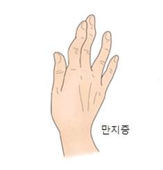 굽은 손가락 (굴지증 사지증)의 대한 예시