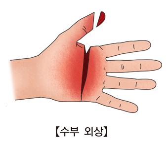 엄지손가락은절된되고 손바닥은 심하게 베임