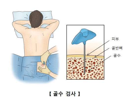 피부 골반뼈 골수등 골수검사의 예시
