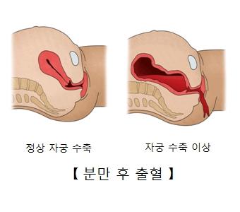 정상 자궁 수축 및 자궁 수축 이상으로 분만후 출혈된 예시