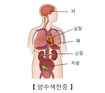 뇌 심장 폐 신장 자궁등 양수색전증의 예시