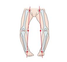 다리의변형을 일으킨 사진예시(일명오다리)