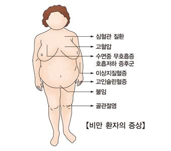 비만환자의증상 심혈관질환,고혈압,수면중무호흡증,호흡저하증후군,이상지질혈증,고인슐린혈증,불임,골관절염