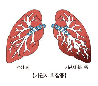 정상적인 폐 와 기관지 확장증이 발생한 폐의 비교 이미지