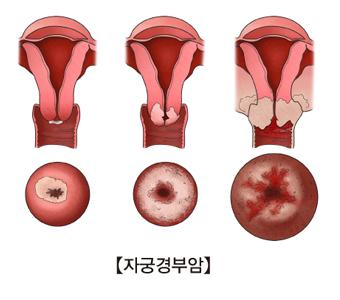 자궁경부암의예시