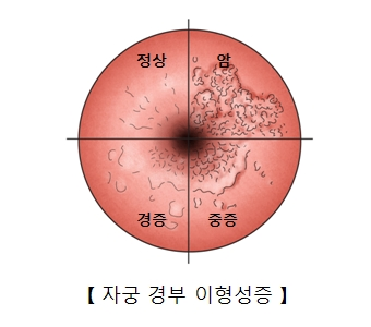 정상 암 경증 중증등 자궁경부 이형성증의 차이의 예시