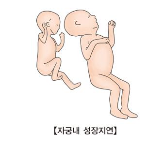 자궁내 성장지연-정상 태아의 모습과 성장지연된 태아의 모습 예시