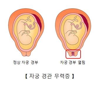 자궁경관 무력증-정상자궁경부와 열려있는 자궁경부의 그림 예시