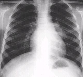 폐결핵 검사를 위해 찍은 흉부 X-ray