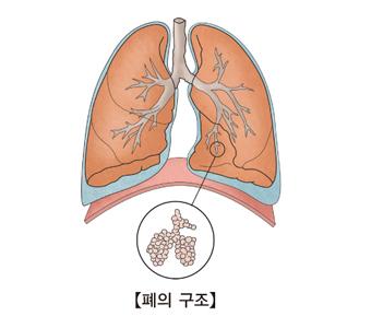 폐의 구조를 나타낸 예시