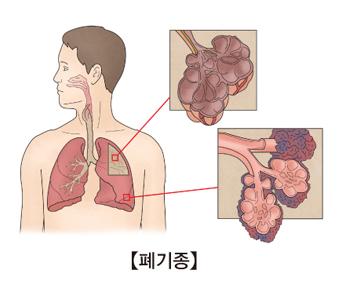 폐 위치에 따라 폐기종을 나타낸 예시
