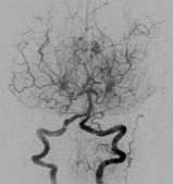 담배연기모양 혈관 사진 예시