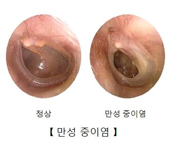 정상중이와 만성중이염에감염된 중이의 내시경사진