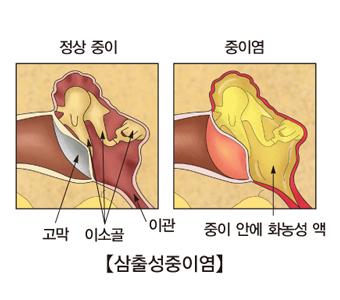 삼출성중이염 정상중이의 고막,이소골,이관의 위치와 중이염에발병한 중이 안에 화농성액이 있는 사진예시
