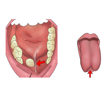 입안의 설소대와 혀의 모습