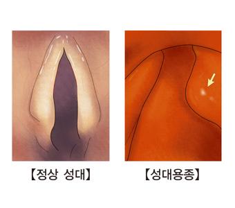 정상성대와 성대용종이 발병한 성대의 사진 예시