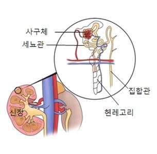 신장안쪽 사구체 세뇨관 집합관 헨레고리등으로 이루워진 신부전의 예시