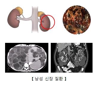 낭성신장질환의 예시및 x-ray사진