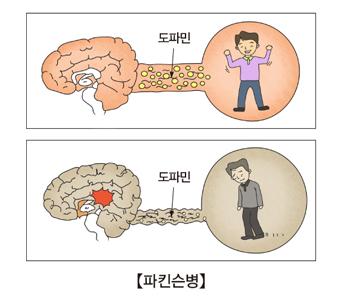 파킨슨병-정상적인도파민계 신경과 파킨슨병에 걸린 도파민계 신경 예시
