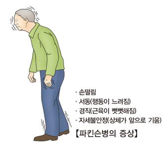 파킨슨병의증상-손떨림,서동(행동이느려짐),경직(근육이 뻣뻣해짐),자세불안정(상체가 앞으로 기움)