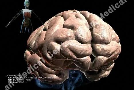 뇌의 모습 사진 예시