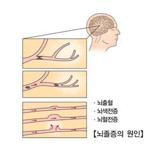 뇌졸증의 원인-뇌출혈,뇌색전증,뇌혈전증 사진예시