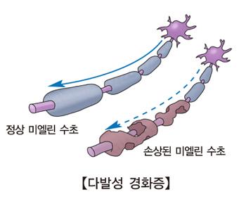 다발성 경화증-정상 미엘린수초와 손상된 미엘린 수초