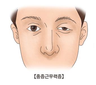중증근무력증-왼쪽눈이 부어오른 남성