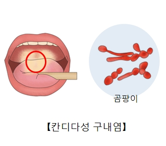 칸디다성 구내염에 감염된 혀와 곰팡이균