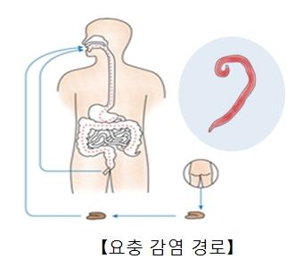 위생관리를 하지않아 소대변을 통해 요층증에 감염될수있는 구조 예시및 요충의모습예시