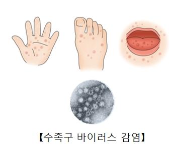 손, 발의 발진과 입안의 궤양성 병변과 수족구바이러스균의현미경사진