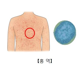 홍역에걸려 피부발진이 일어난 사람의 몸과 홍역바이러스균의모습
