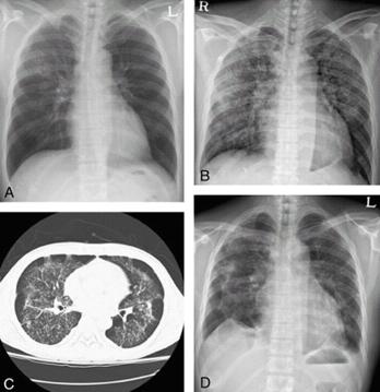 파라인플루엔자 감염증에 걸린 사람의 흉부 X-ray사진