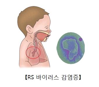 소아의 호흡기구조와 RS바이러스균의현미경사진