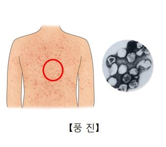 풍진에의해 온몸에 발진이 일어난 사진과 루벨라바이러스 현미경사진