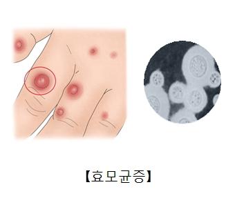 효모균에 감염된 손가락과손등과 효모균현미경사진