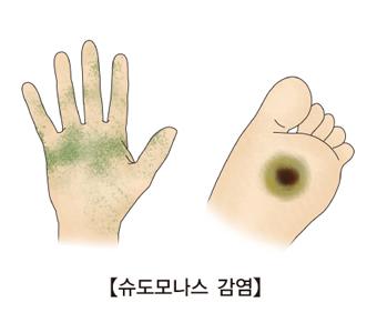 슈도모나스균에 감염된 손등과 발바닥 사진