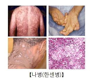 나병으로인해 온몸에 발진이나있는모습과 손가락이 뒤틀려있는모습 목부터뒷통수까지심한물집과염증이 잡혀있는 사진및 나병균의사진