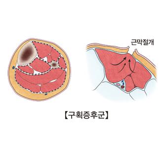 근막절개된 구획증후군의 예시