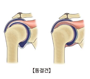 정상적인어깨관절과 동결견에 걸린 어깨관절