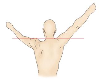 부종이있는 왼쪽어깨는 들어올리지 못하고 정상인 오른쪽어깨는 똑바로 들고있는 모습