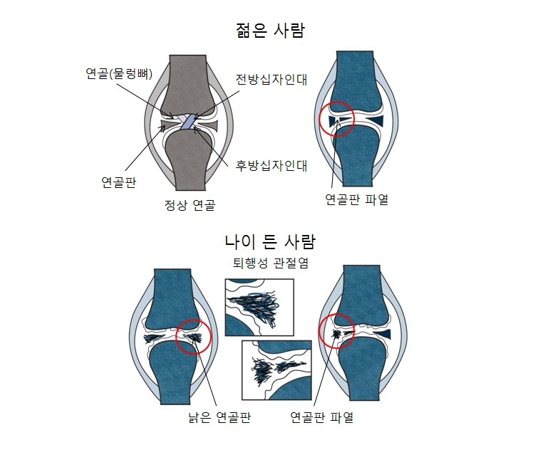 정상연골과 물렁뼈,연골판,후방십자인대,전방십자인대의 위치, 젊은사람의연골판파열사진예시,나이든사람의 낡은연골판과 연골판 파열사진예시