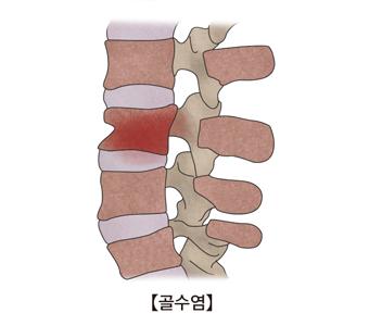 척수한부분에 골수염이 걸린 사진 예시